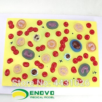 ENOVO Medical human .blood cell amplification model hematology department pathology physiology teaching model